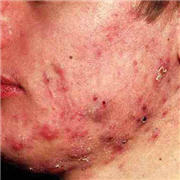 Cystic acne on the jaw